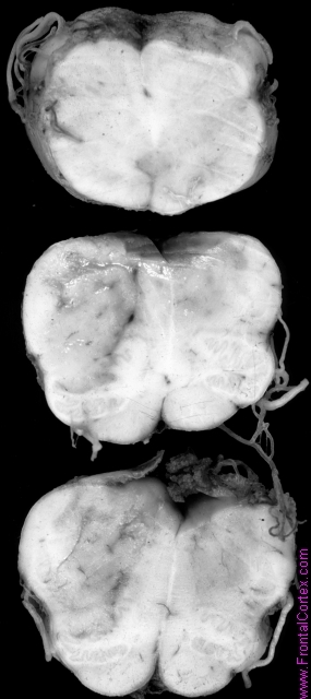 Dorsolateral medullary infarct, serial transverse sections