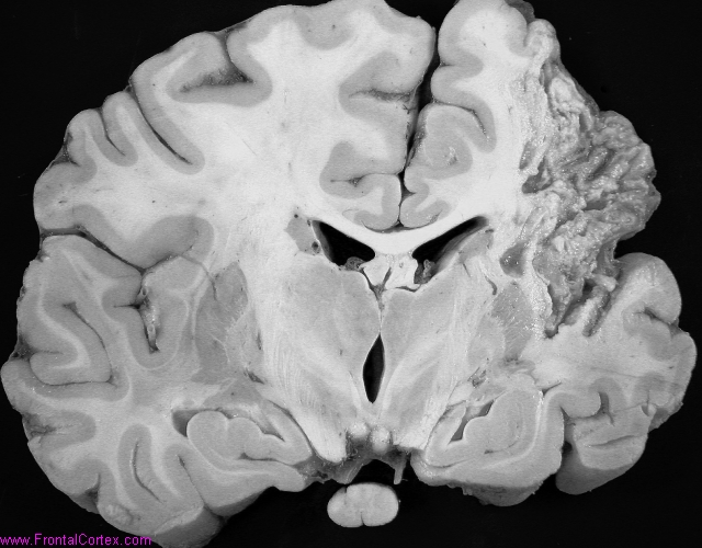 Cavitating middle cerebral artery infarct with secondary corticospinal tract degeneration
