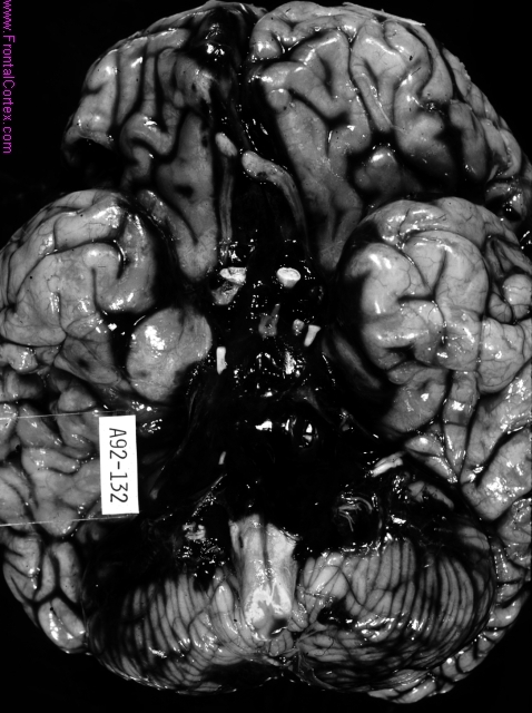 Subarachnoid hemorrhage, base of brain