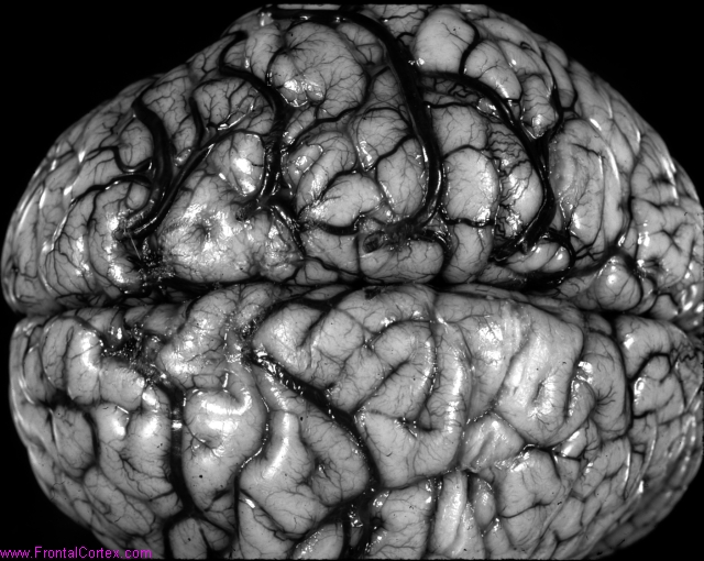 Cortical venous thrombosis in a shaken 23-month-old