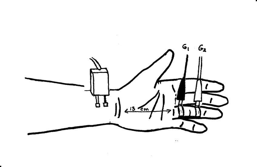 Median Sensory Nerve - Ring Finger (antidromic)