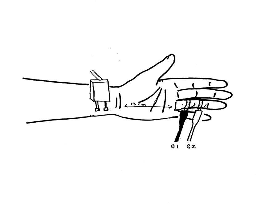 Ulnar Sensory Nerve – Ring Finger (antidromic)