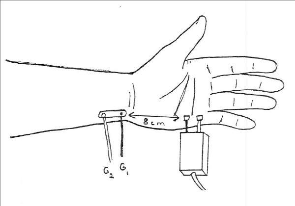 Ulnar Palmar Mixed Nerve (orthodromic)