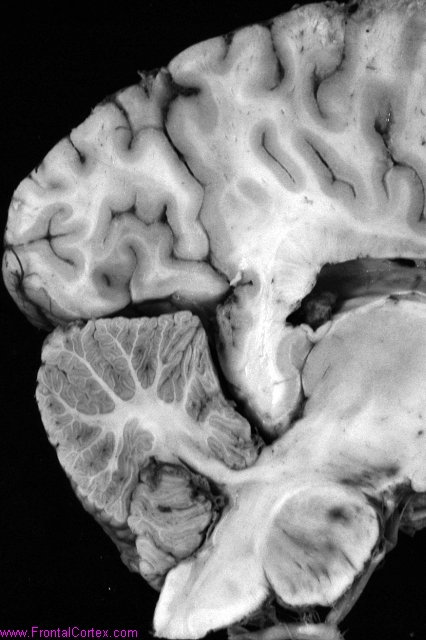 Early Alzheimer's disease, sagittal section of brain and brainstem