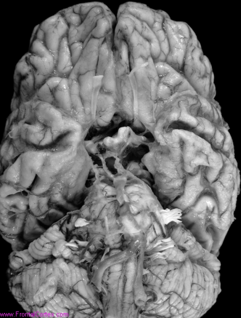 Alzheimer's disease, ventral surface of brain
