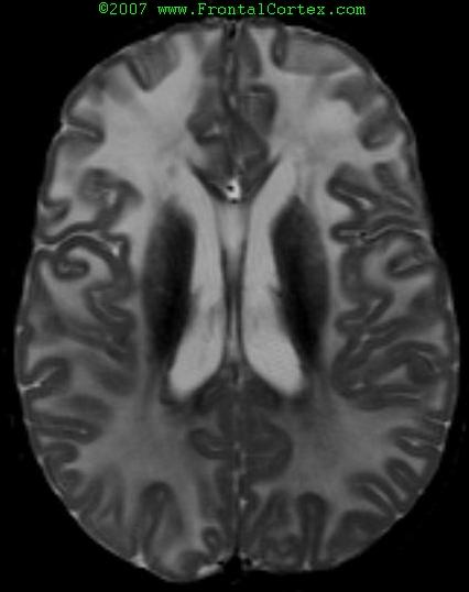 Alexander Disease on T2-weighted MRI