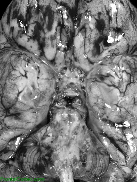 Acute bacterial meningitis, ventral surface of brain.