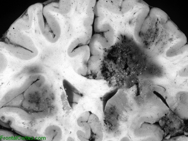 Cerebral aspergillosis, coronal section through the rostrum of the corpus callosum