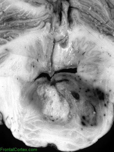 Brainstem Glioma, transverse section