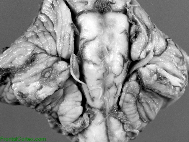 Chiari II malformation, ventral surface of posterior fossa structures