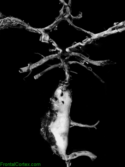 Fusiformvertebro-basilar aneurysm, dissected circle of Willis.