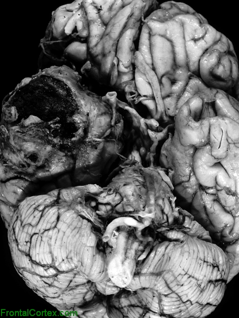 Giant MCA aneurysm, ventral surface of brain.