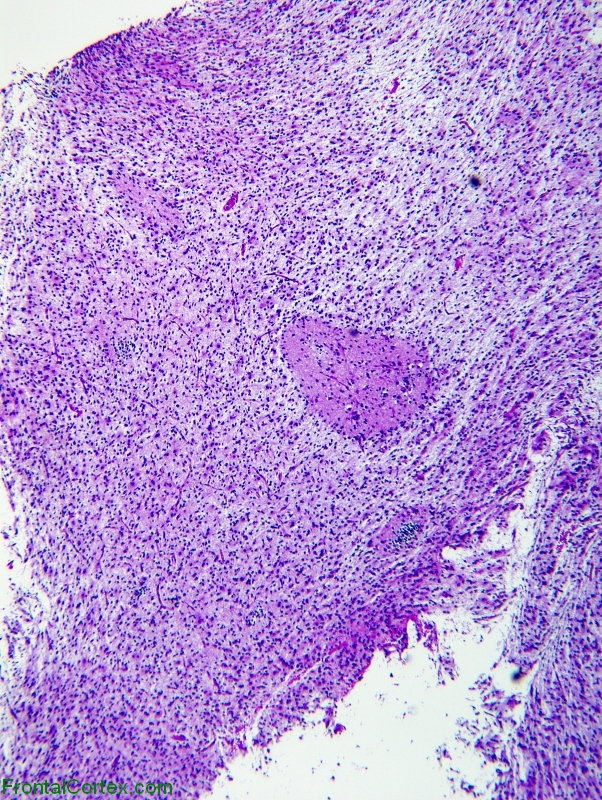 Glioneuronal Tumor with Neuropil Islands, H&E stain x 40