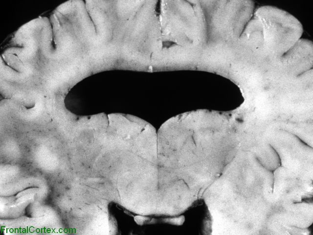 Alobar holoprosencephaly,   Coronal section through brain