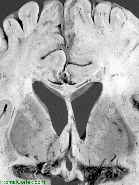 Machiafava-Bignami disease,Coronal sectioned through basal ganglia and cerebrum