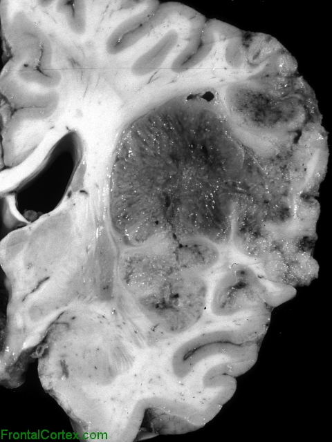 Metastatic Malignant Neuroectodermal Tumor, coronal section of brain at the level of the thalamic nuclei.
