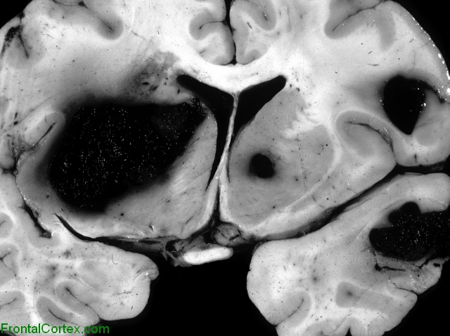 Metastatic melanoma, coronal section of brain at level of basal ganglia.