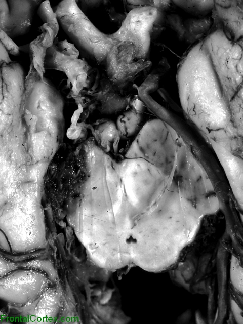 Cavernous angioma, ventral surface of brain, close-up