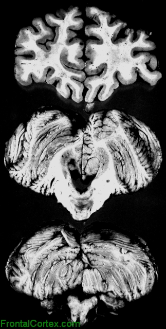 Olivopontocerebellar Atrophy, coronal section through frontal lobe and transverse sections through pons, medulla, and cerebellum.