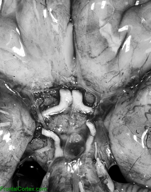 Isolated arhinencephaly, ventral surface of brain
