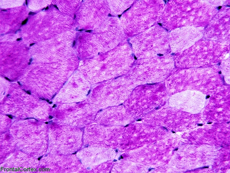 Periodic Acid Schiff (PAS) stain of normal muscle.