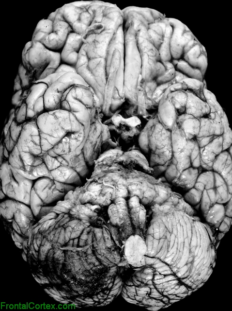 Hemorrhagic infarct, posterior inferior cerebellar artery distribution, ventral surface of brain.