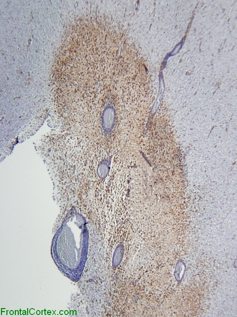 Active demyelinative plaque, periventricular region, CD68 immunohistochemical staining