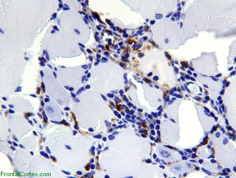 Polymyositis, immunohistochemical staining for CD68 x600