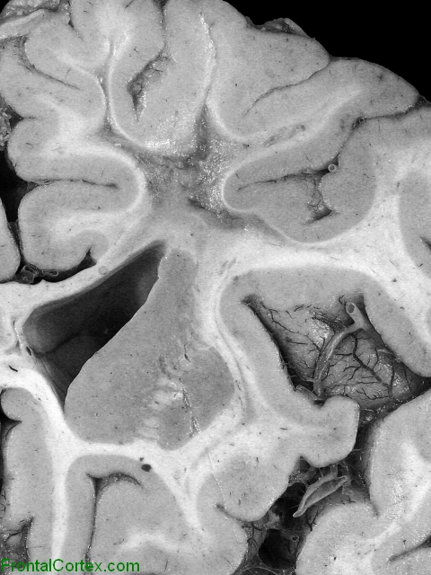 Late-delayed radiation necrosis, coronal section of brain