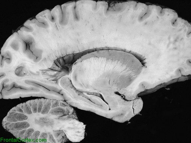 Sagittal gross section of normal brain