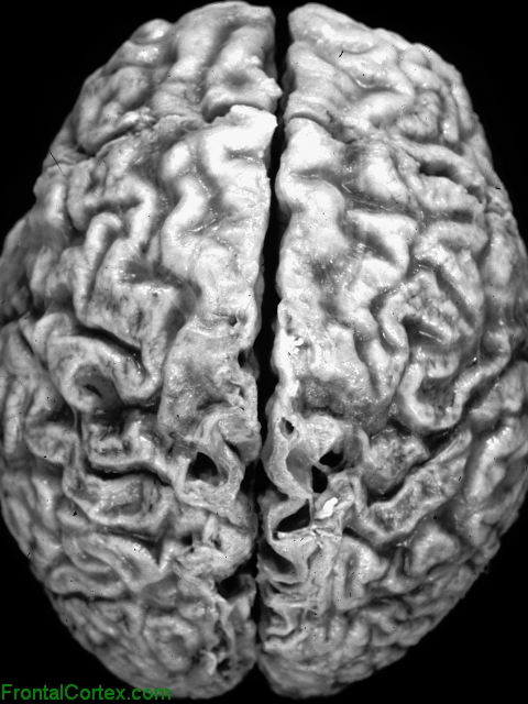 Alzheimer disease, dorsal surface of brain.