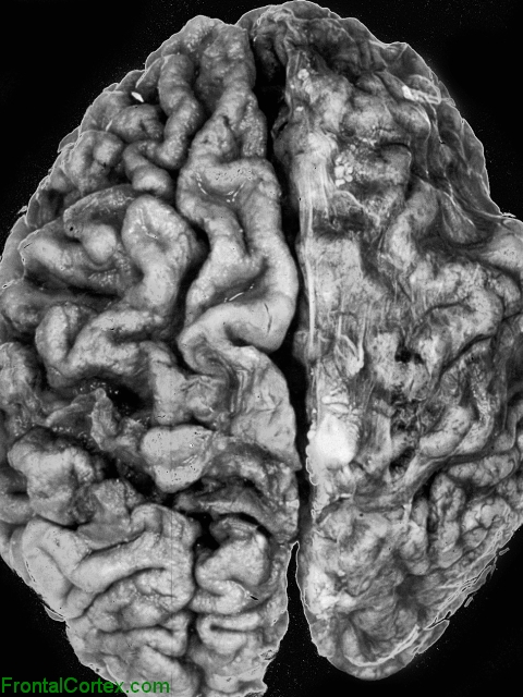 Sneddon Syndrome, dorsal view of brain.
