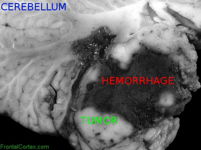 Atypical teratoid/rhabdoid tumor, sagittal section through cerebellum and brainstem, close-up, labeled