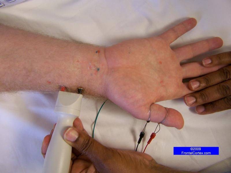 For Comparison, Radial Sensory Nerve Conduction Study - Recording the thumb (antidromic)