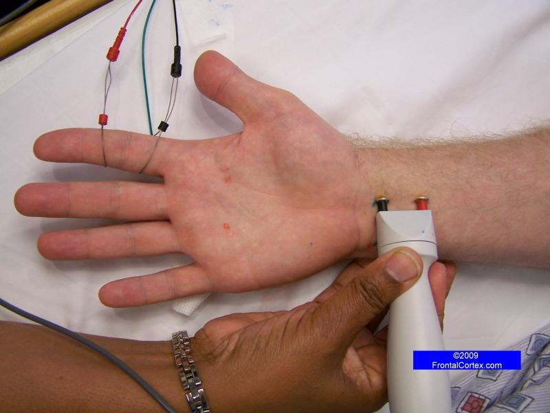 Median Sensory Nerve Conduction Study, recording the index finger (antidromic)