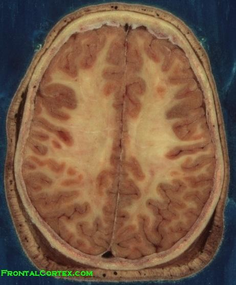 Brain Horizontal VHP