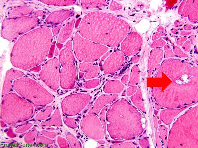 Inclusion Body Myositis H&E 200 with arrow