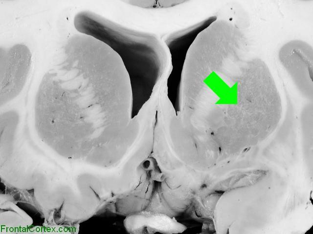 Basal Ganglia Coronal Close - Pu