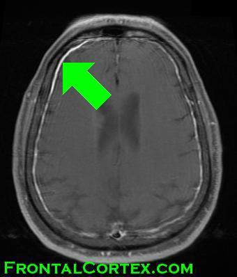 MRI - Enhancing Meninges with arrow